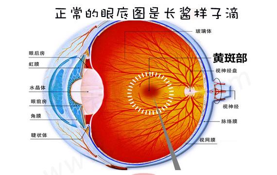 一图读懂:糖尿病患者如何打好眼睛保卫战!