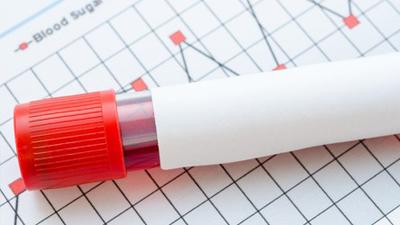 糖尿病监测