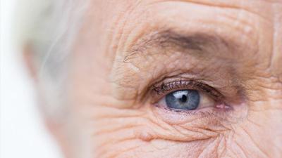 糖尿病眼睑下垂