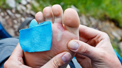 糖尿病人为何伤口不容易愈合