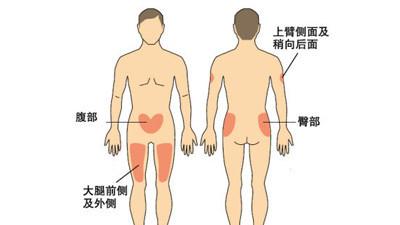 大腿粗患糖尿病风险小