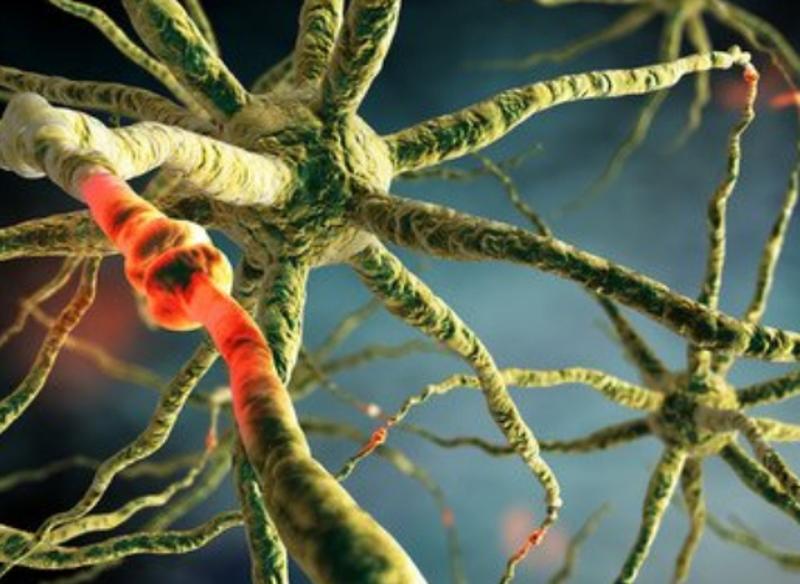 糖友换神经病变能治好的吗?怎样才能治愈?
