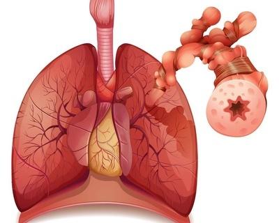 哪些是常见的糖尿病相关性肝损伤?