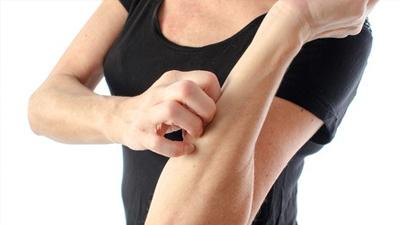 糖友皮肤的改变 要警惕糖尿病肾病