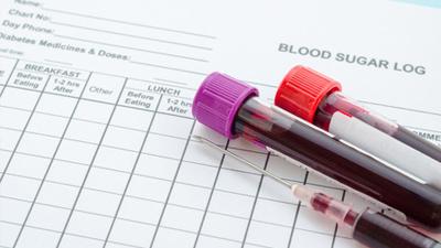 专家提醒:控血糖时别忘了血脂监测
